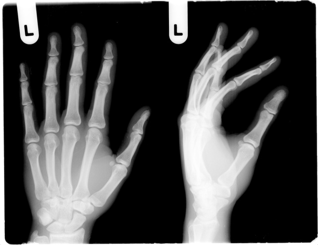 Left hands